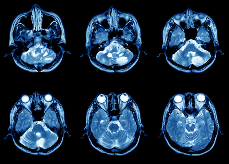 Picture of MRI images of human head